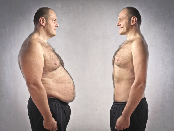 Benefits Of Weight Loss Surgery Durban Bariatric Surgery Drs Du